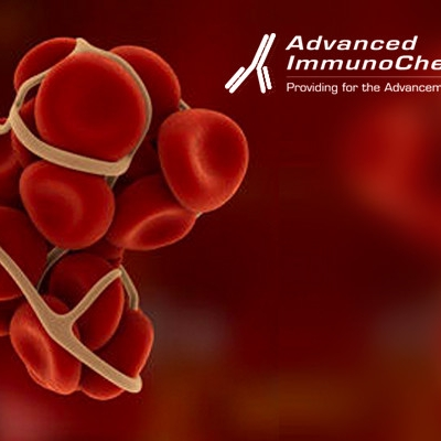 New D-dimer monoclonal antibodies: improved immunoassay equally specific for FDPs and D-dimer.New D-dimer monoclonal antibodies: improved immunoassay equally specific for FDPs and D-dimer.